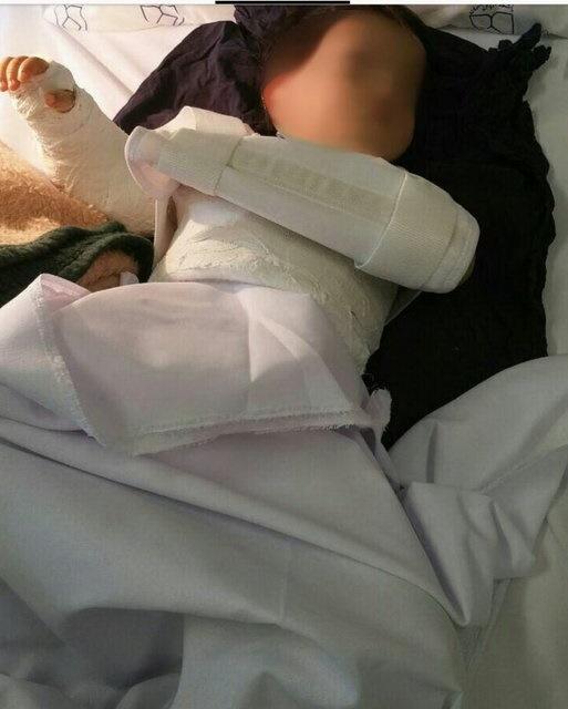 دست کودک را اشتباهی جراحی کردند | خطای پزشکی محرز است