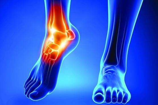 روشهای درمان طبیعی برای تسکین علائم آرتریت روماتوئید
