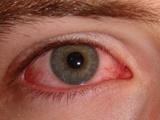 لکههای قرمز داخل چشم علامت چیست؟