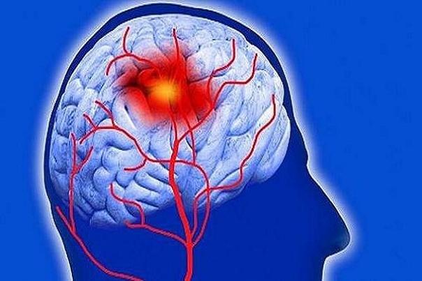 بیماری پارکینسون ریسک سکته را افزایش میدهد