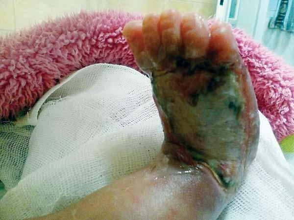 تأیید سهلانگاری پزشکان در سوزاندن پای نوزاد چند روزه