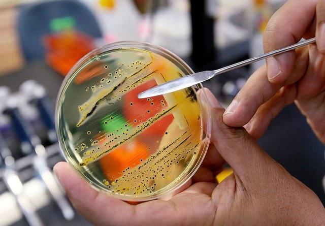 سازمان جهانی بهداشت فهرست ۱۲ باکتری خطرناک را منتشر کرد