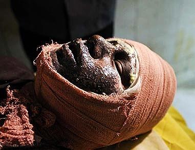 هشدار پزشکی قانونی برای آسیبهای حوادث چهارشنبهسوری