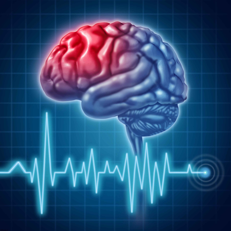 آشنایی با راههای پیشگیری  از سکته مغزی