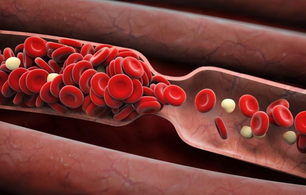 نشانههای وجود لخته خون در بدن