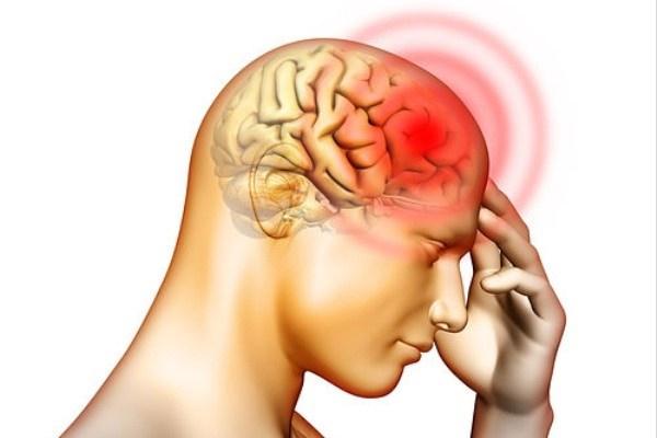 آشنایی با سردردهای خطرناک