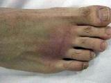 علائم آرتروز پا را بشناسید