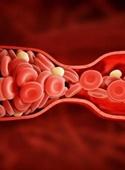 گوشت و تخم مرغ عامل اصلی بروز لختگی خون