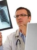 پیشبینی عود سرطان ریه امکانپذیر شد