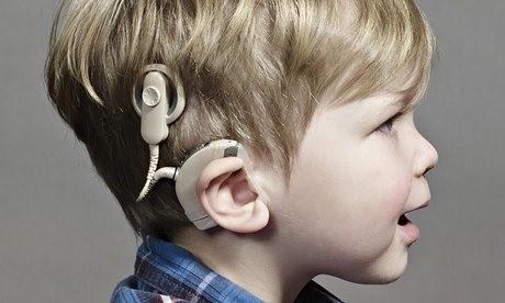 زمان طلایی کاشت حلزون شنوایی در کودکان چه وقت است؟