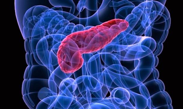سرطان پانکراس چه علائمی دارد؟