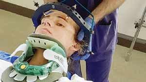شکستن گردن بر اثر عطسه