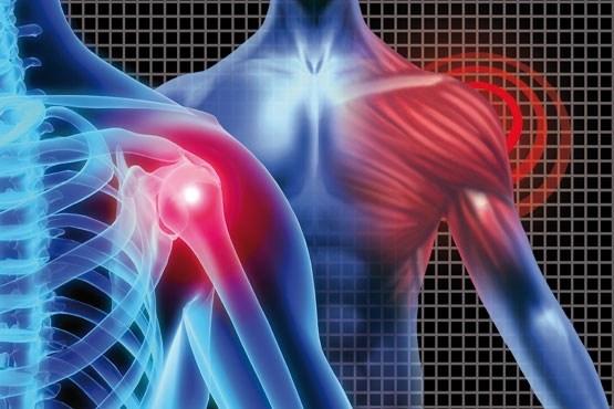 شایعترین انواع شانه دردها کدامها هستند؟