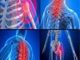 ۴۰ درصد ایرانیها به اختلالات عضلانی و اسکلتی مبتلا هستند