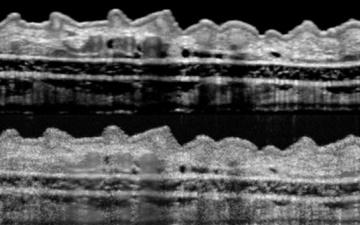 مشاهده سه بعدی بافت بدن | بیوپسی مجازی میشود