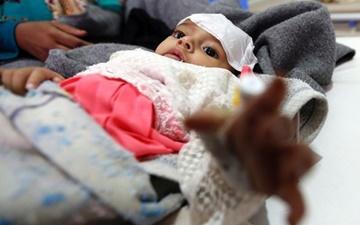 موارد وبا در یمن تا شهریور ممکن است از مرز ۳۰۰۰۰۰ بگذرد