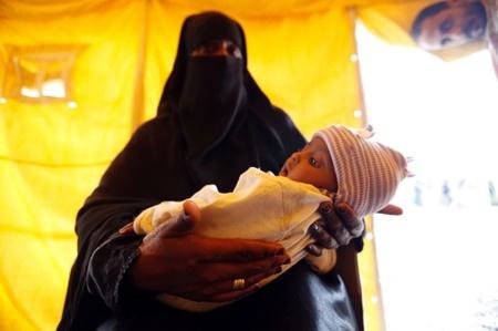 نشانههای کاهش سرعت شیوع وبا در یمن به چشم میخورد
