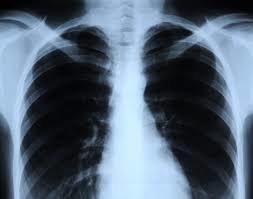 اشعه ایکس با دوز کم میتواند به قلب آسیب رساند