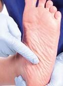 چطور از زخم پای دیابتی پیشگیری کنیم؟