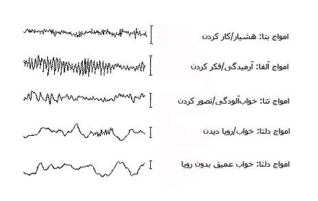 brainwaves۲