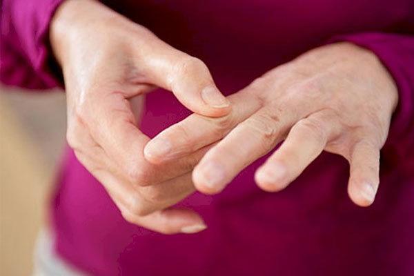آرتریت پسوریازیس