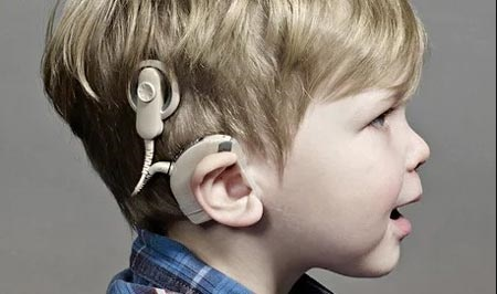 بهترین سن برای کاشت حلزون شنوایی | هزینه ۶ میلیون تومانی جراحی