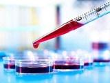تشخیص سرطان سینوس با آزمایش خون