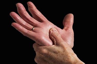 ارتباط برخی مشاغل خاص با بیماری دردناک آرتروز روماتوئید