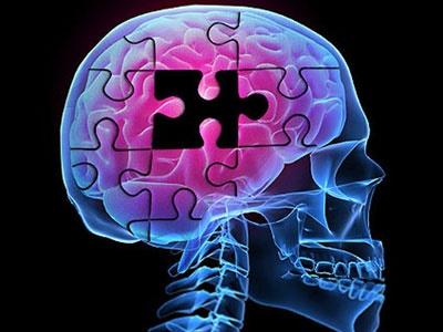 اختلال حافظه کوتاه مدت را جدی بگیرید   هر ۳ ثانیه یک آلزایمری در جهان
