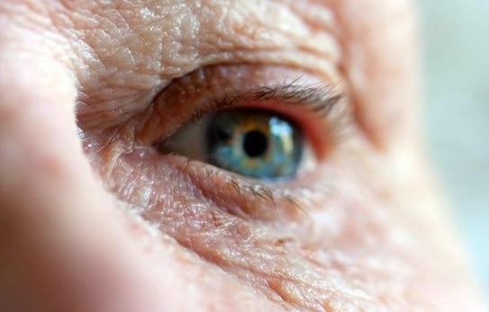 تشخیص آلزایمر با الماس