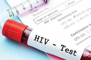 ویروس ایدز,سلامت,ایدز,بیماری