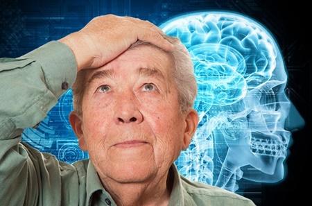 زوال عقل,بیماری آلزایمر,مجله نکته بهداشتی روز,سکته مغزی,سلامت