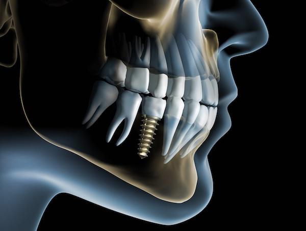 آشنایی با ایمپلنتهای دندانی
