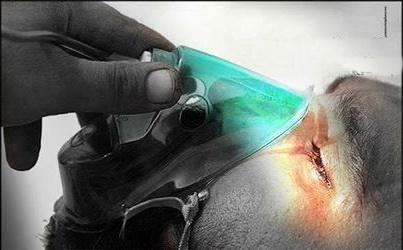 ارائه روش درمانی نوین برای مصدومان  شیمیایی ریوی توسط محققان ایرانی