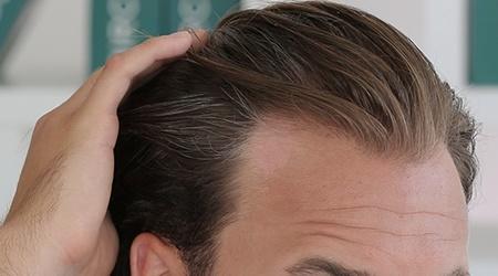 ضعف سلامت مو با چه بیماریهایی ارتباط دارد؟