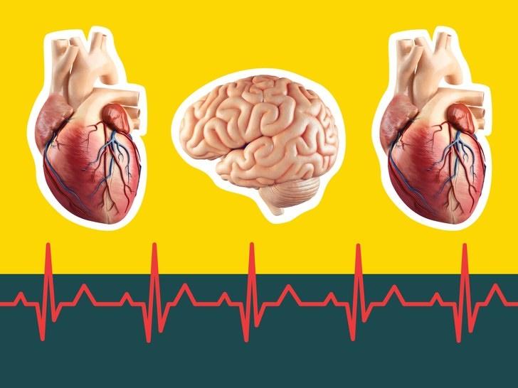 افزایش خطر سکته مغزی پس از حمله قلبی