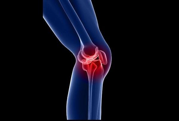 دلیل تخریب مفصل زانو | غذاهای کلسیمدار بخورید