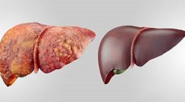 علل بروز کبد چرب | مراقب چربی خون و چاقی باشیم