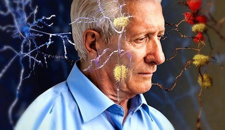 نکته بهداشتی: ۱۰ نشانه آلزایمر