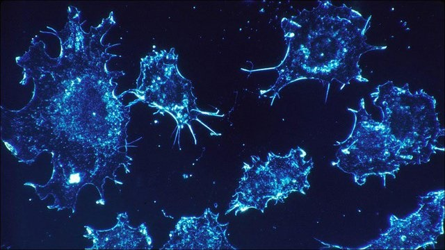 افزایش خطر ابتلا به سرطان در مردان