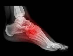 نکته بهداشتی: آرتریت مفصل پا