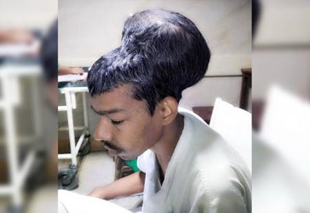 پزشکان هندی بزرگ ترین تومور مغزی را جراحی کردند