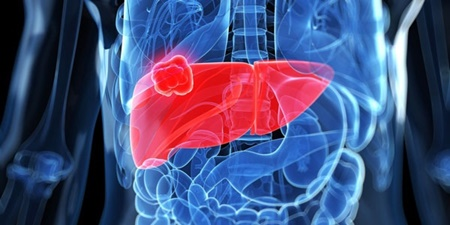 مهم ترین نشانه های هپاتیت حاد را بشناسید