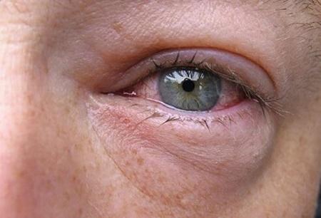 نکته بهداشتی: التهاب ملتحمه چشم
