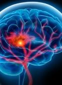 ۷ علامت هشداردهنده پیش از بروز سکته مغزی