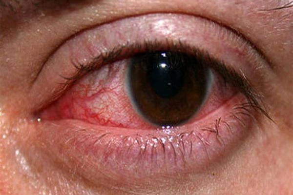 آشنایی با داروهایی که چشم را خشک میکند