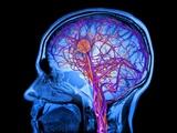 تلاش برای ذخیرهسازی اطلاعات مغز توسط شرکتی نوپا