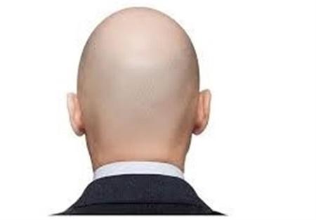 ریزش مو ۴۰ دلیل دارد | راهکارهای جدید در جهان