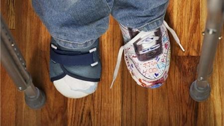 دانشمندان ژن پای چماقی را کشف کردند