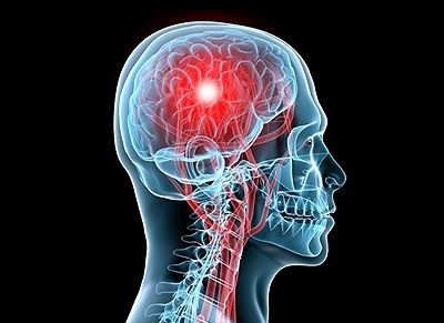 برنامه جدید وزارت بهداشت برای درمان سکته  مغزی